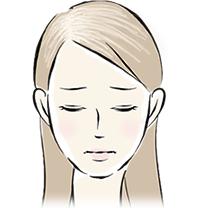 びまん性脱毛症イメージイラスト