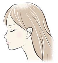 女子男性型脱毛症(FAGA)イメージイラスト
