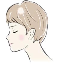 細菌(多発・円形)性脱毛症イメージイラスト