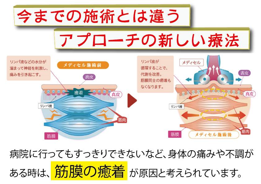 メディセル 筋膜新 HP