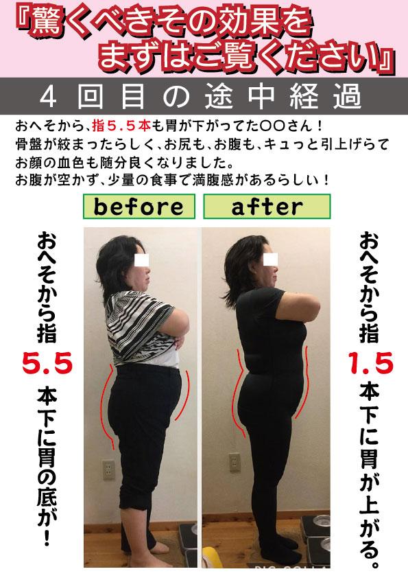 胃下垂 前後イラスト1回目~4回目jp5